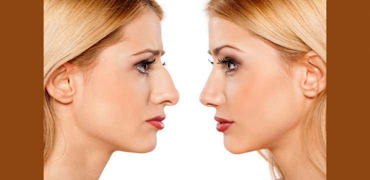 Botox injection in Pak