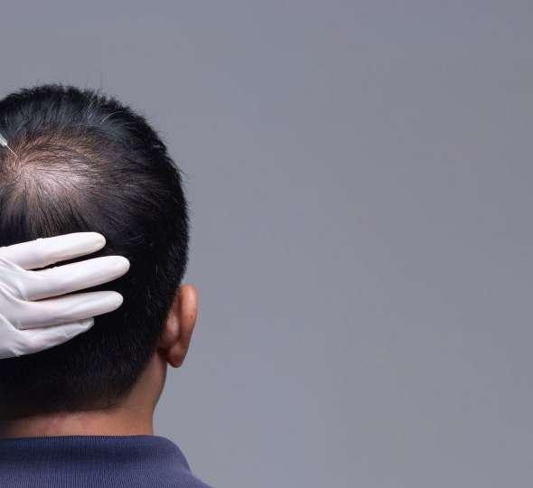 Hair PRP, PRP Treatment for Hair Loss, Hair Loss Treatment in Peshawar