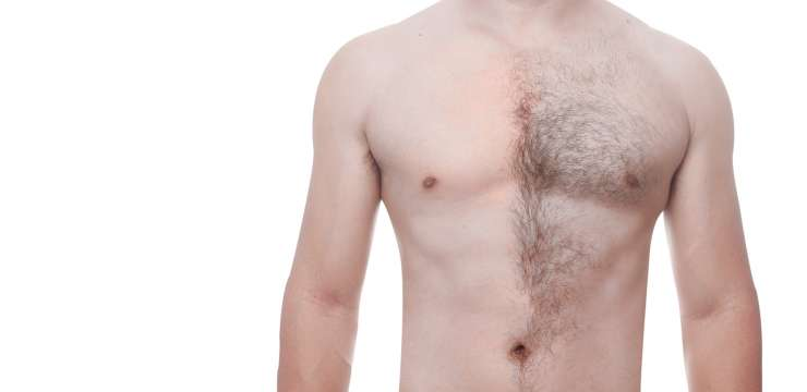 Laser Hair Removal, Man With Removed Hair and With Hair Partial