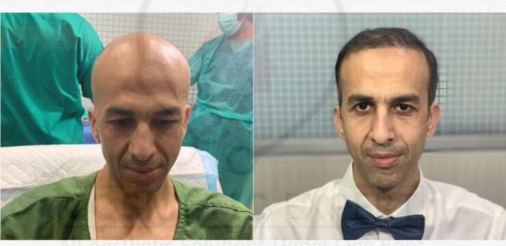 Hair transplant in peshawar, hair trannsplat before and after