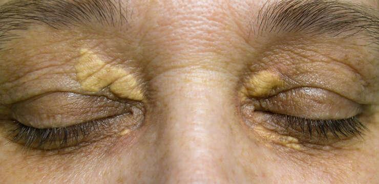 xantelasma in peshawar, xantelasma treatment, eyelid surgery