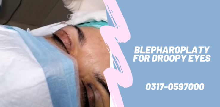 Blepharoplasy for Droopy Eyes