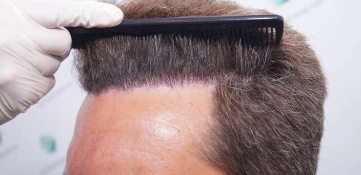 unshaven fue hair transplant in pakistan